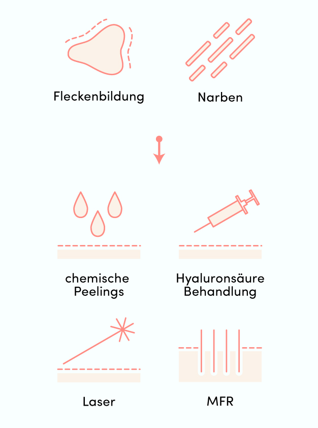 Infografik_Akne_Mobil-10
