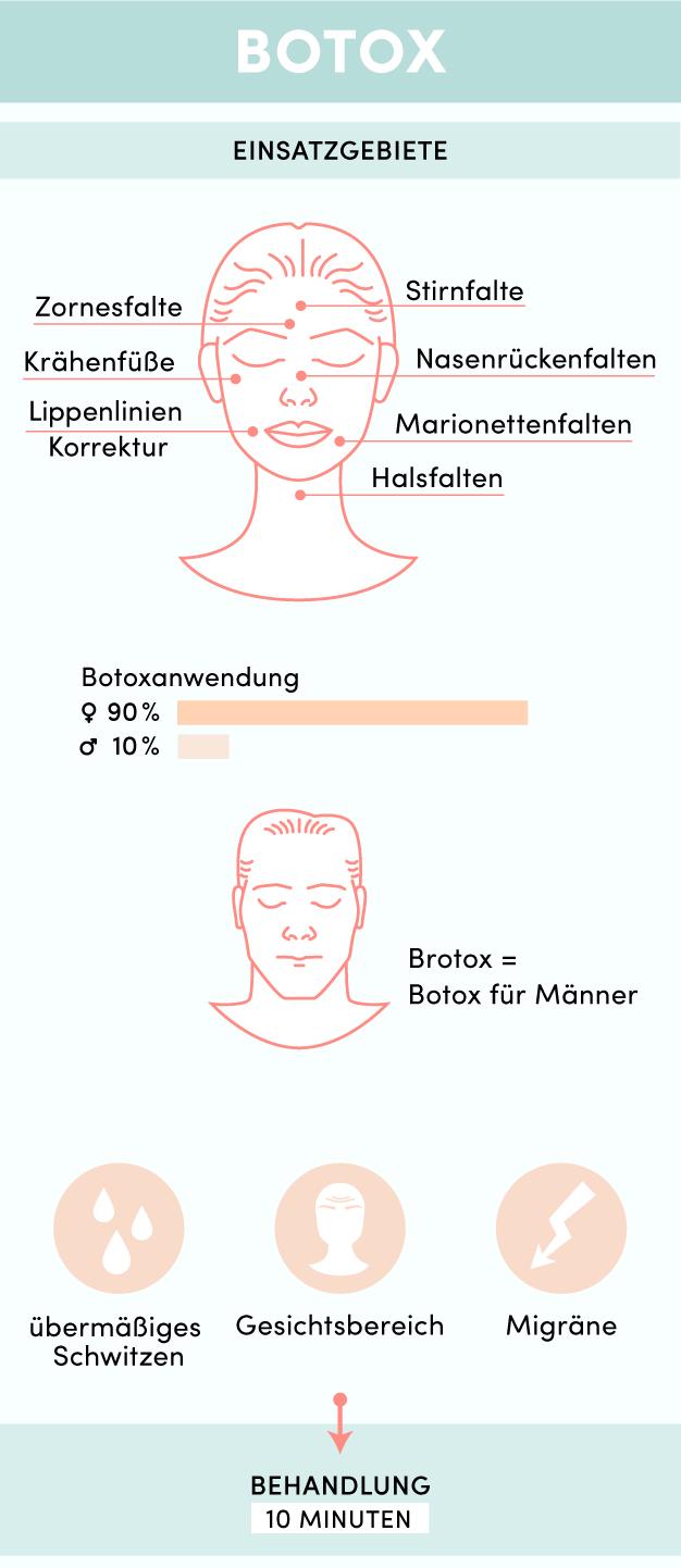 Infografik_Botox_Mobil-01